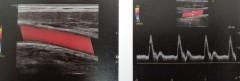 頸動脈エコー2